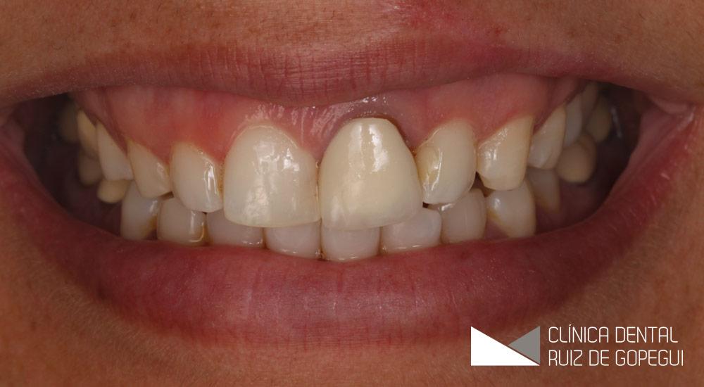 Caso: Fundas dentales