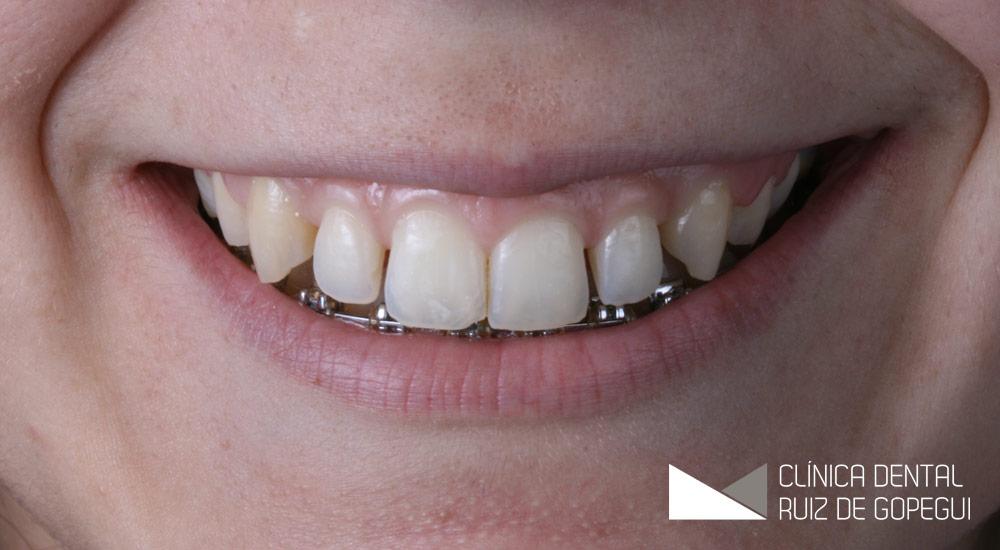 Caso: Ortodoncia