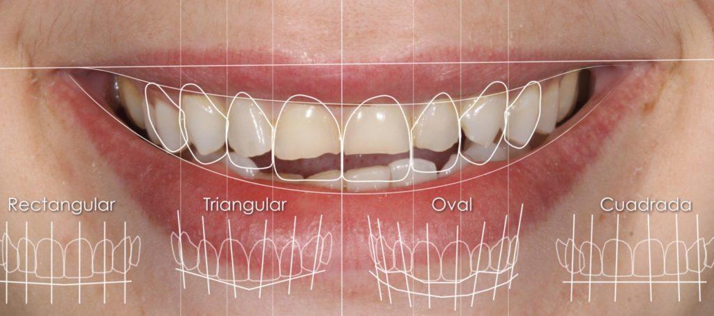 Carillas Composite - Clínica Dental Gopegui