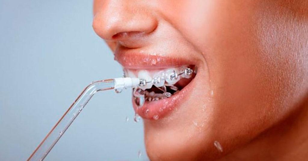 irrigador dental 5 patologías que puedes evitar - Ruiz de Gopegui