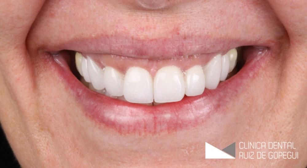 Caso: Tratamiento periodontal, diseño de sonrisa y carillas feldespáticas