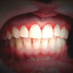 Gingivitis ulcerosa necrosante aguda