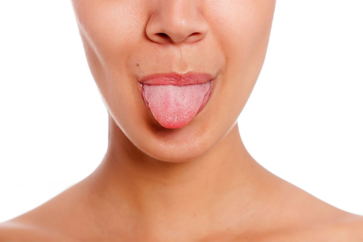 Lengua fisurada o escrotal