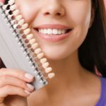 Famosos con carillas dentales