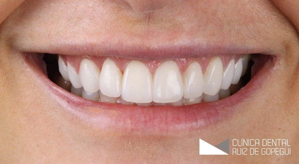 Caso: Diseño Digital de Sonrisas y Carillas Feldespáticas