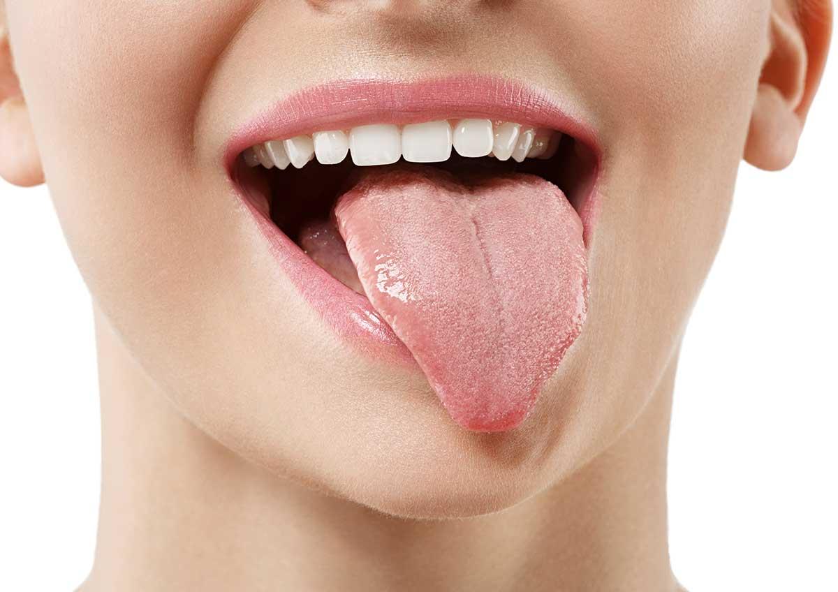 Lengua vellosa negra - Clínica dental Ruiz de Gopegui